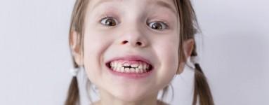 Fluor ima važnu ulogu u dječjoj prehrani